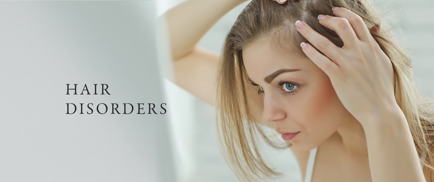 Hair Disorders Treatment Guildford
