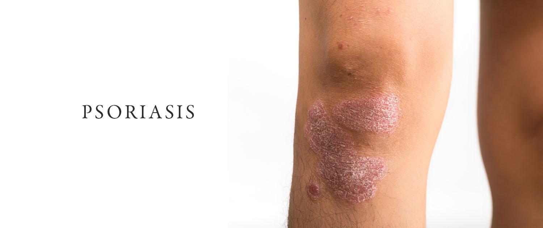 Psoriasis Treatment Surrey