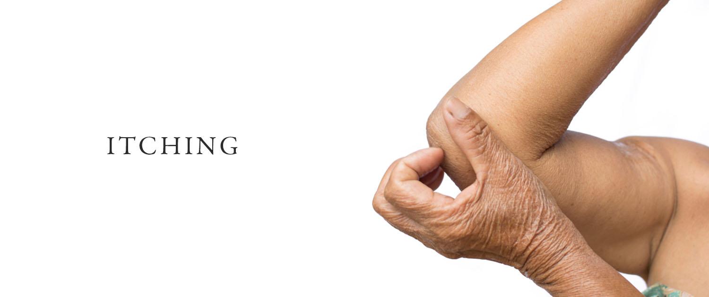 Skin Itching Surrey Dermatologist